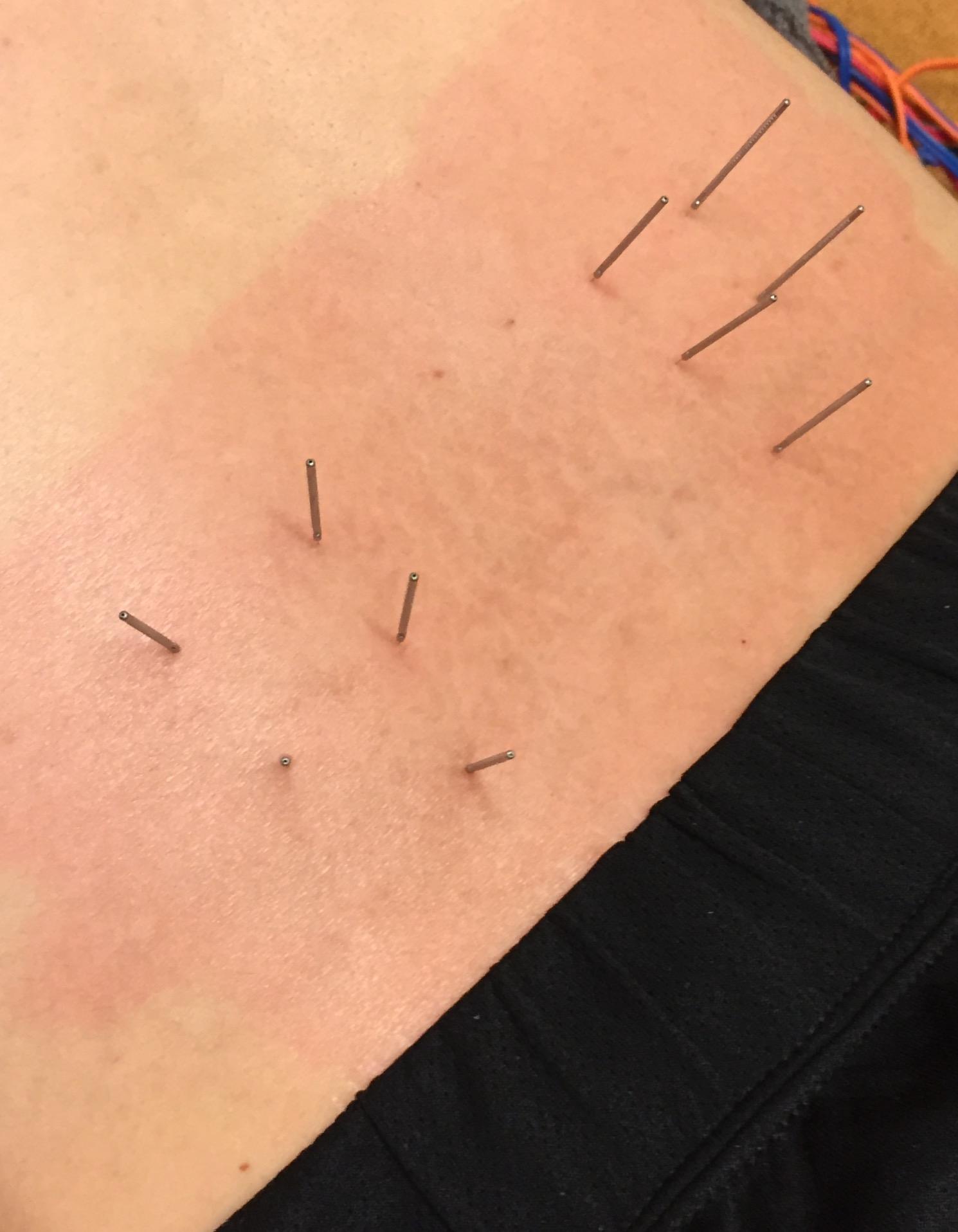 鍼治療によるフレアー現象